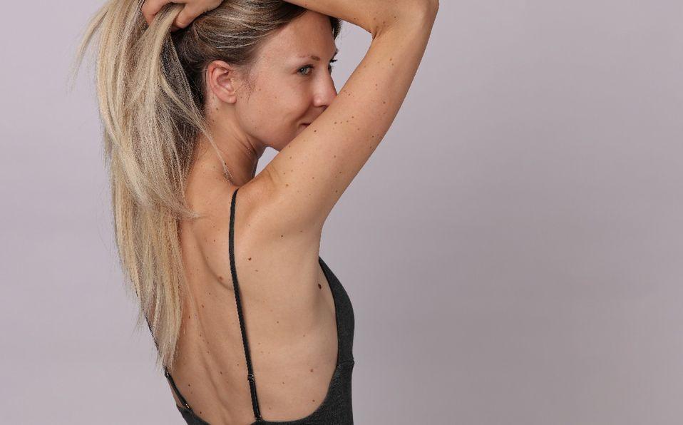 El melanoma es de los más diagnosticados en adultos jóvenes, particularmente en mujeres (Foto: Shutterstock).
