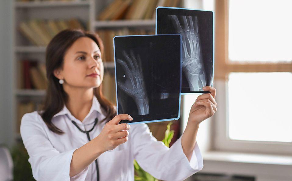 Es importante mantener sana nuestra masa ósea. Foto: Archivo