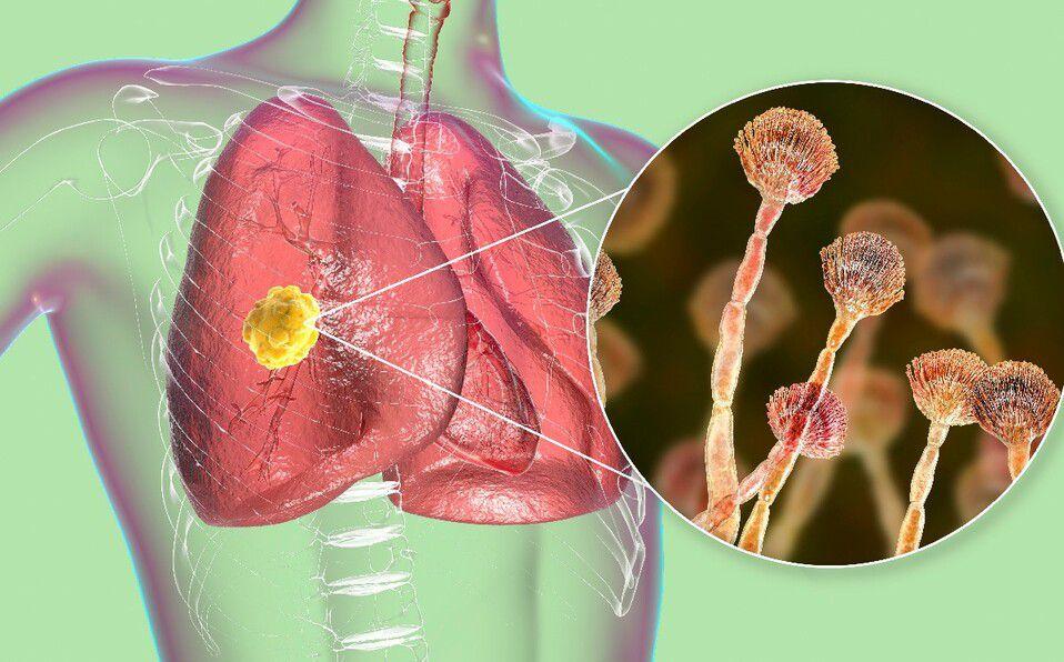 Hongo en los pulmones (Foto: Shutterstock).