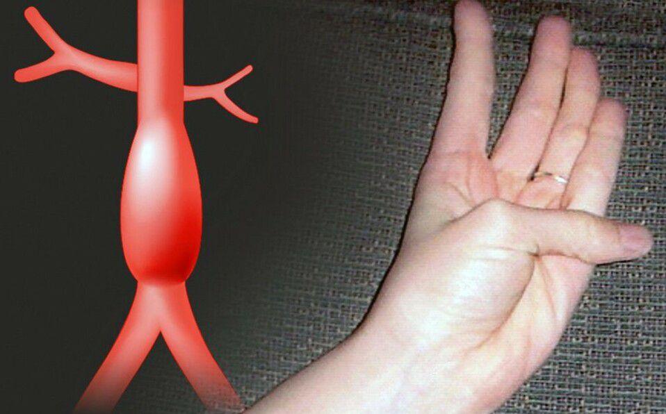 Esta prueba la puede hacer cualquier persona, y solo requiere el pulgar y la mano, aseguran los cardiólogos.