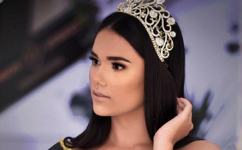 Reina de belleza de Brasil fallece en el quirófano por un tumor. (Foto: Instagram).