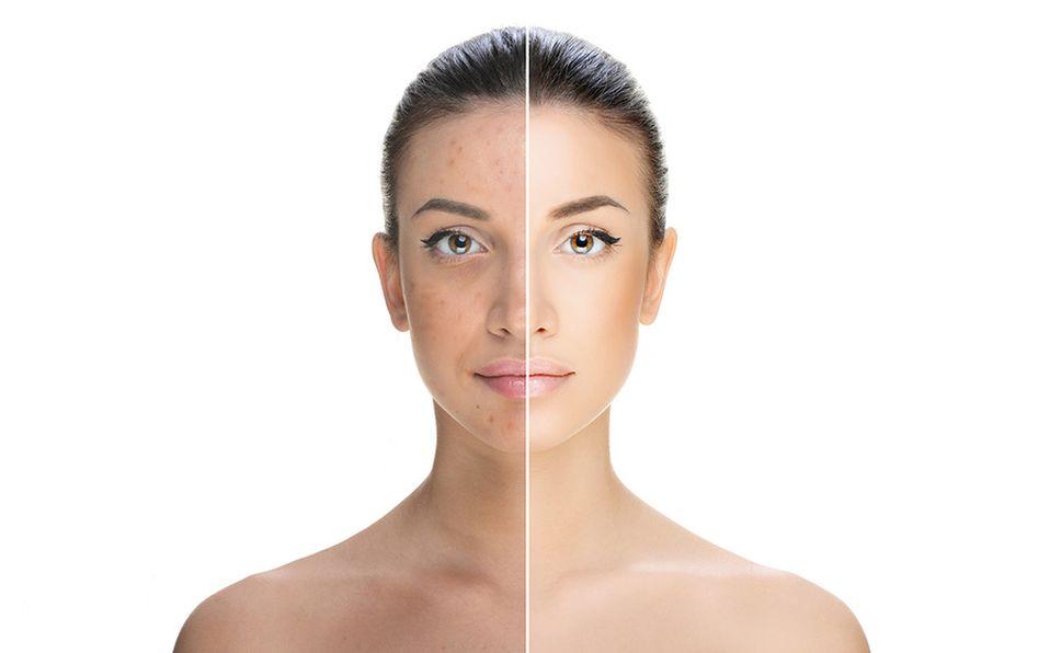 Cómo prevenir y eliminar manchas en la cara fácil y rápido