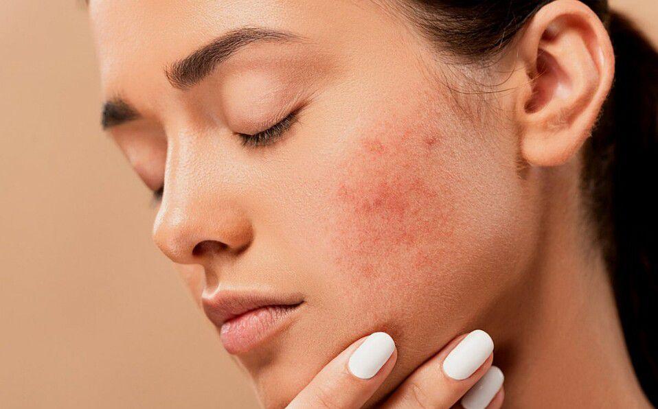 Cómo aliviar la piel irritada