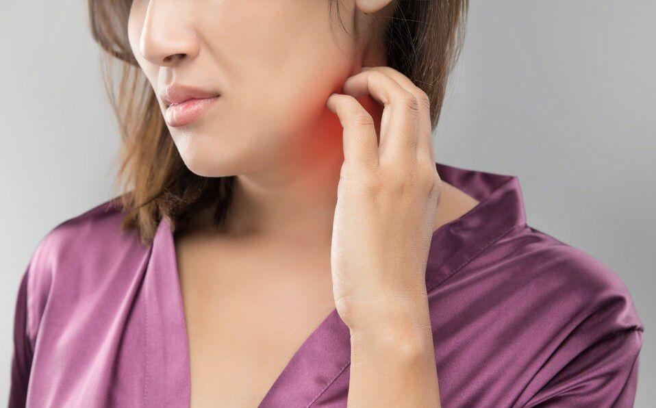 La comezón intensa es uno de los síntomas principales de la dermatitis (Foto: Getty Images).